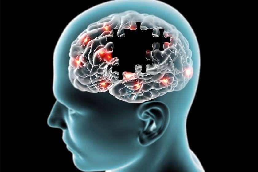 ალცჰაიმერი