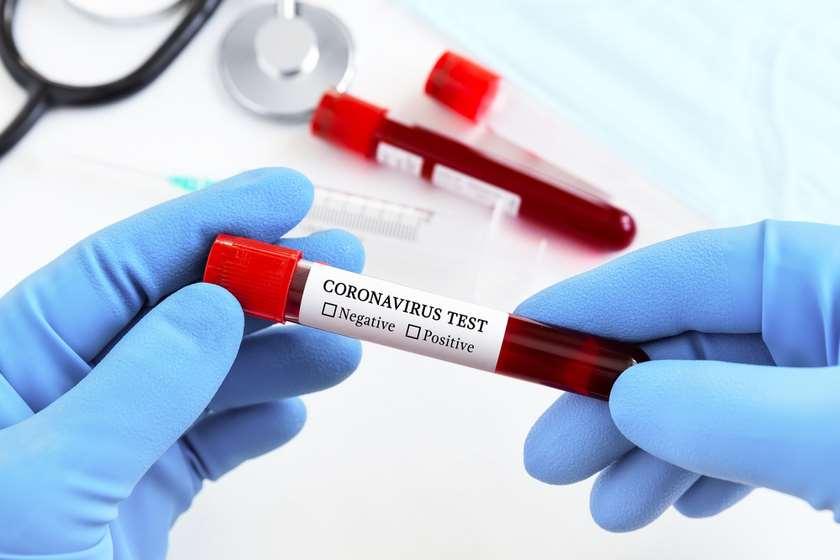 კორონავირუსის ტესტი